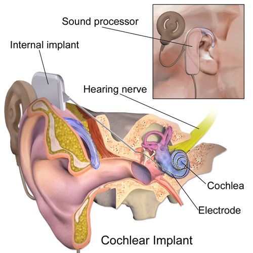 cochlear_implants